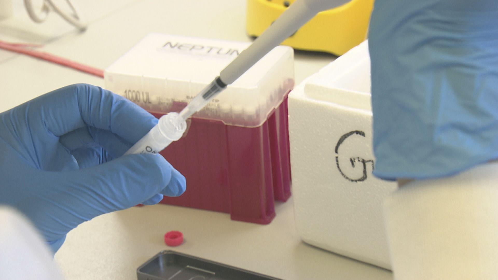 首本地源頭不明個案帶Delta變種病毒 正跟進傳播途徑