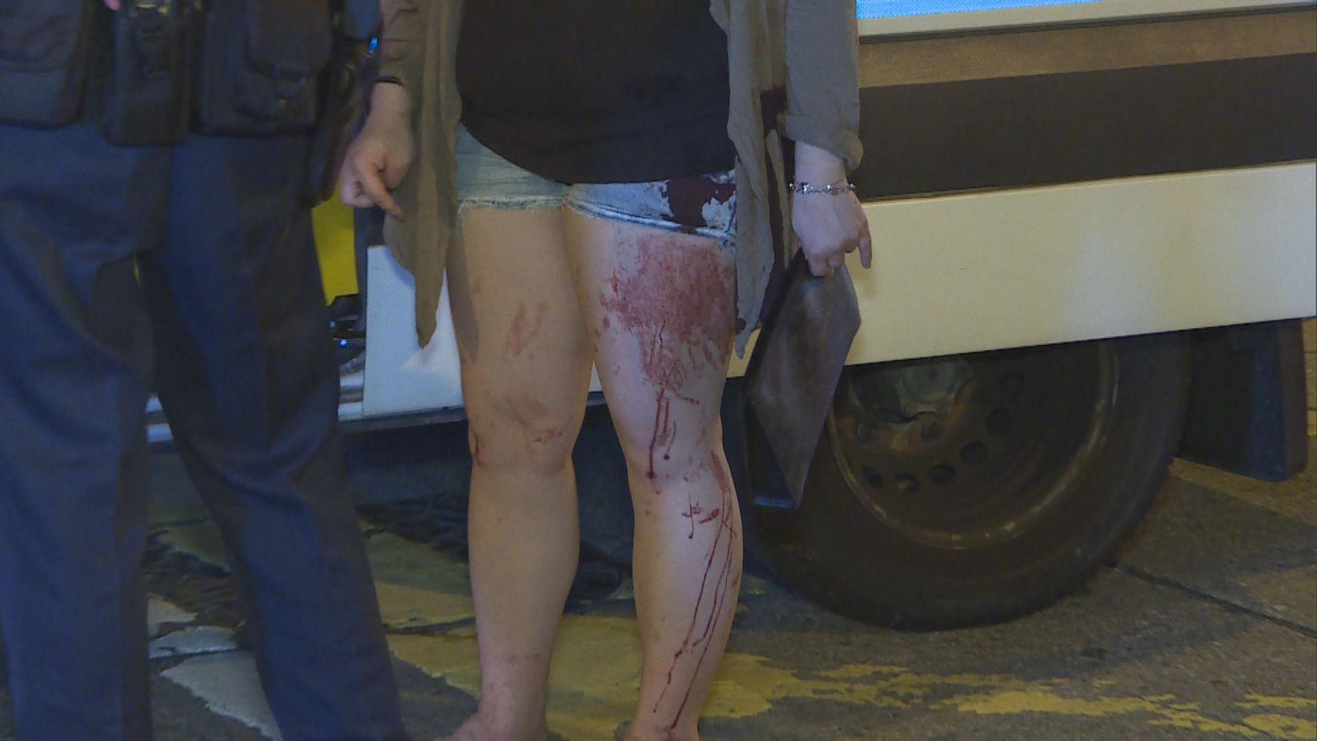 旺角兩男子遇襲受傷